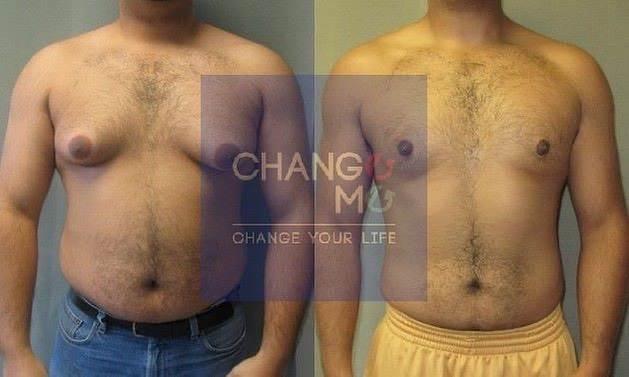 شفط دهون الصدر عند الرجال