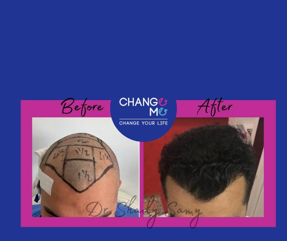 قبل وبعد زراعه الشعر