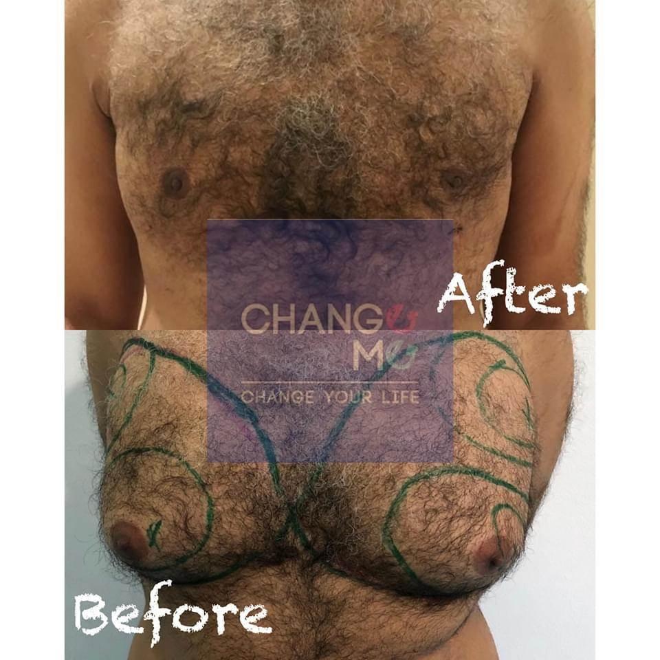 نتائج قبل و بعد عملية التثدي