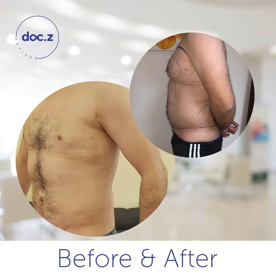 شفط دهون الثدي قبل و بعد