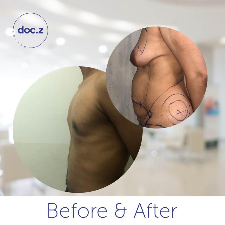 قبل و بعد شفط الدهون