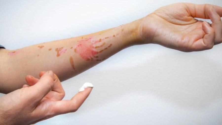Doctor Live إزالة آثار الحروق بالليزر هل تحقق نتائج فعالة